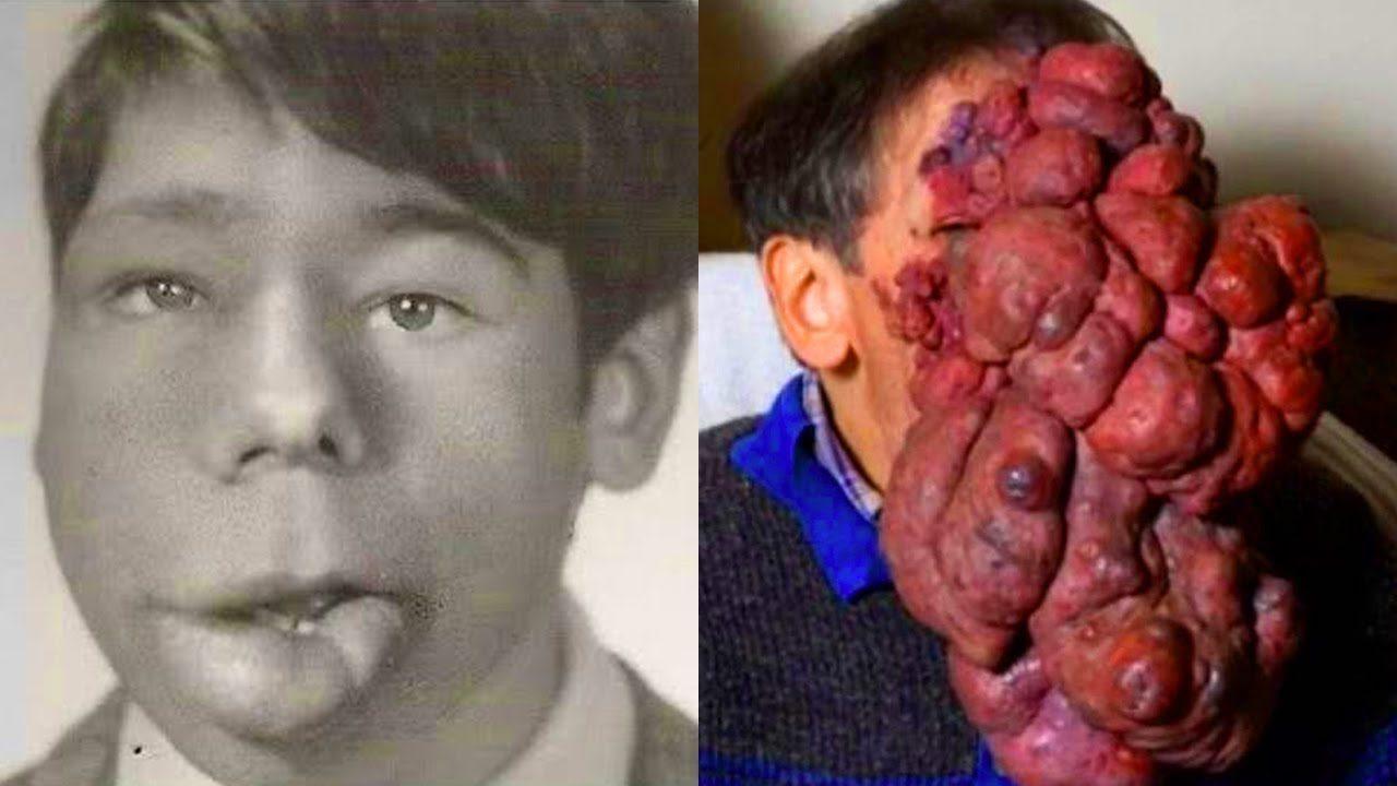 История болезни-рак губы